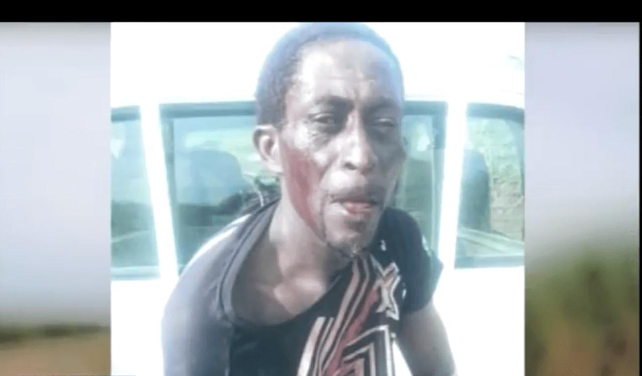 Haitiano corta un brazo a niño de tres años en medio de pelea con la madre del menor