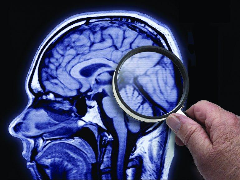 Resultado de imagen para pinterest medico dice puede revivir un muerto