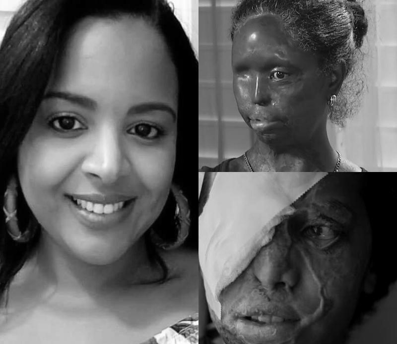 """""""Ácido del diablo"""", un arma que deja marcas en la sociedad dominicana"""